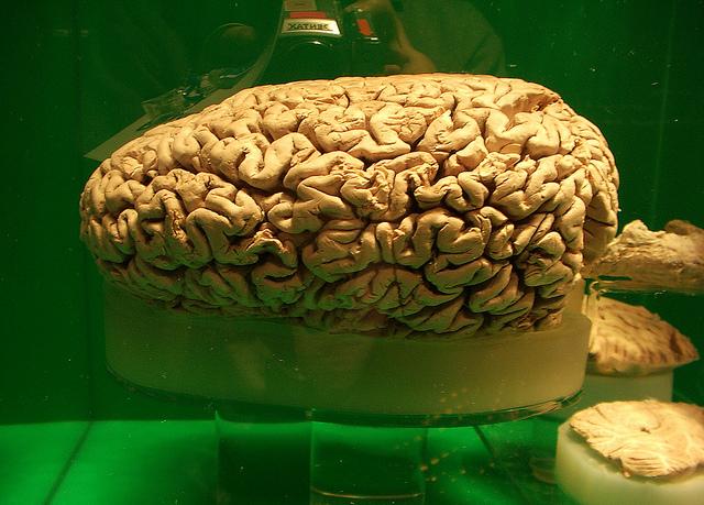 女性脳とは
